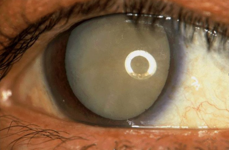 Dense cataract