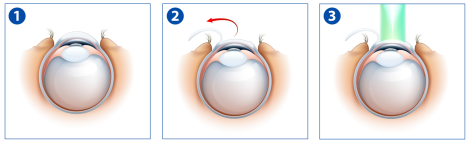 LASIK step 1 to 3
