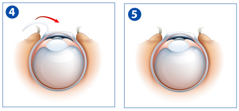 LASIK step 4 to 5