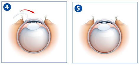 LASIK step 4 to 5